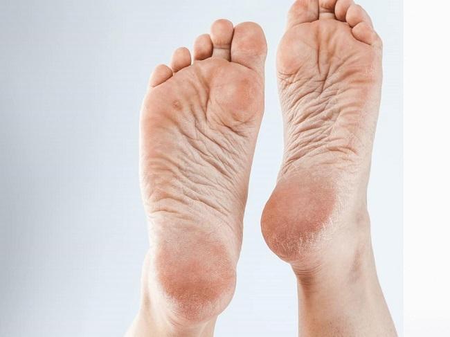 Dấu hiệu nhận biết gót chân bị nứt