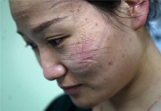 Những vết hằn thường hay xuất hiện ở vùng da phía sau tai, hai bên má và sống mũi